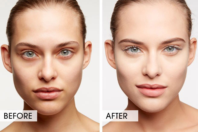 faceliftgym-darkcircle-before-after